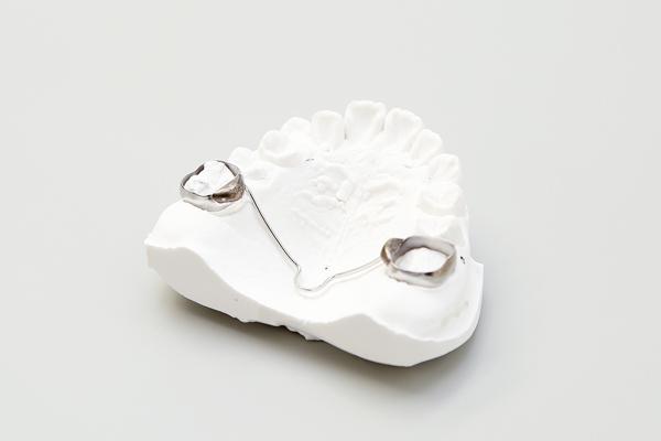 歯列拡大装置歯列拡大装置