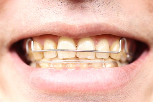 機能的顎矯正装置