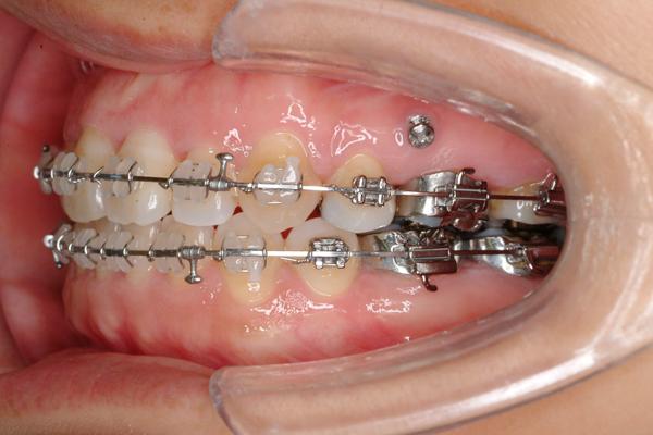 歯科矯正用アンカースクリューを用いた矯正歯科治療